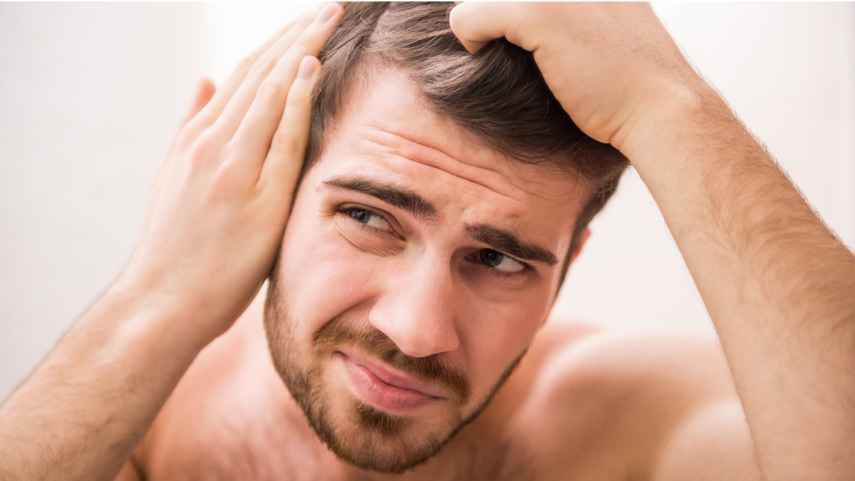 8 Early Signs of Male Pattern Baldness cover